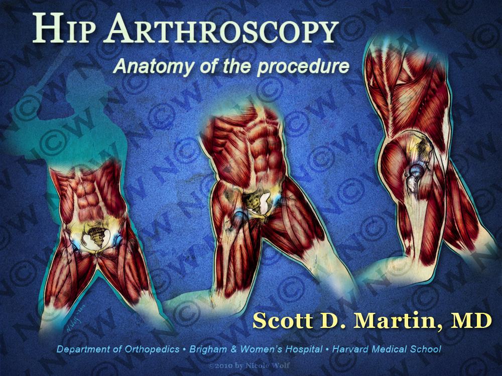 Baseball Swing Hip Arthroscopy Powerpoint Design